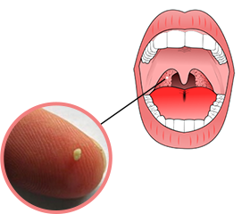 Tonsil Stones Diagram
